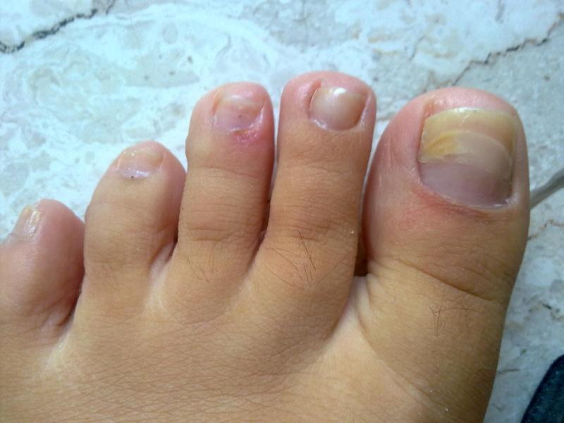 Come trattare la posizione di unghie morbida