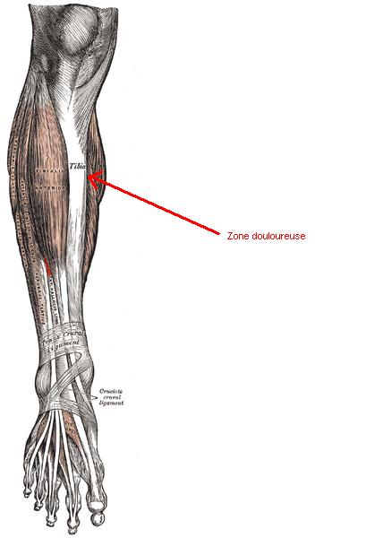 Douleur interieur genou course a pied 100 images for Douleur sur le cote exterieur du pied